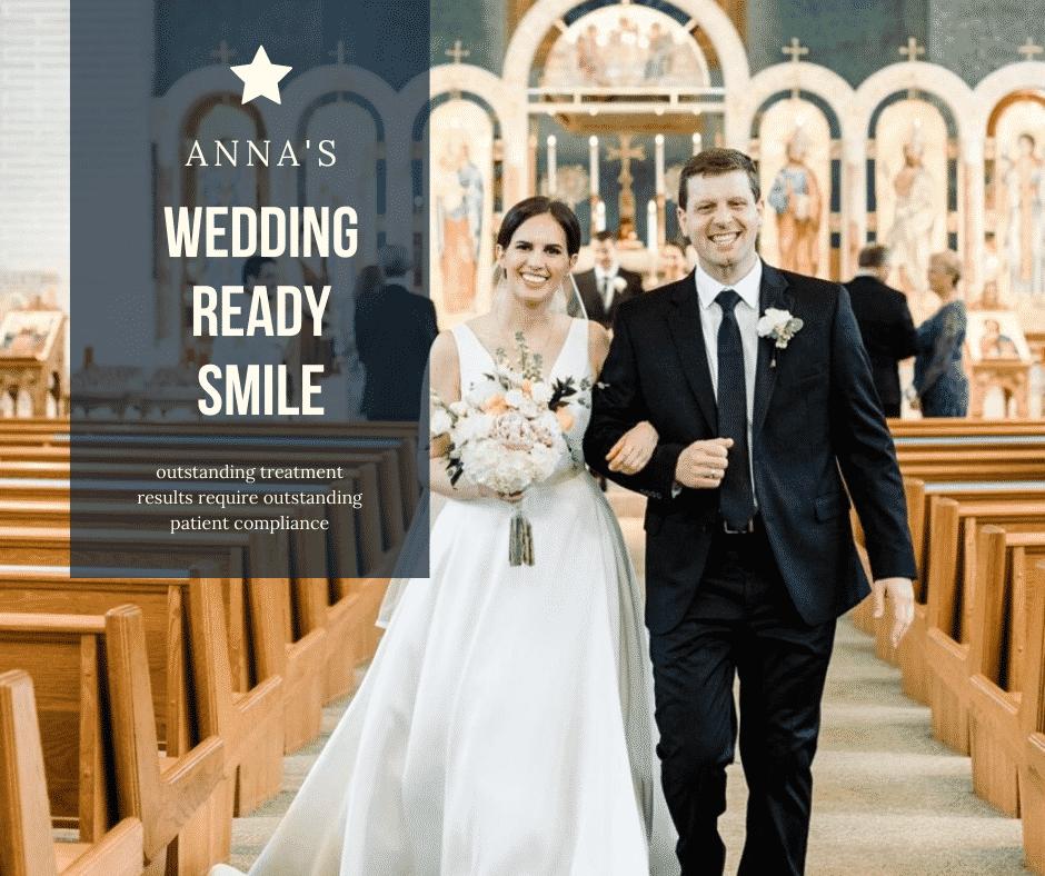 Anna's Wedding Ready Smile