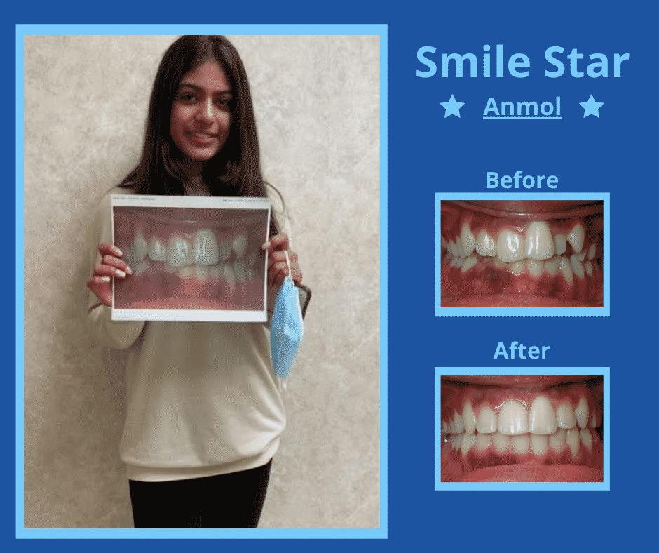 Smile Star - Anmol